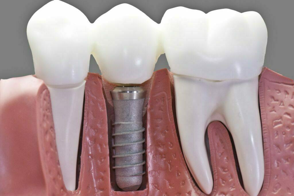 Implanty zębowe Gdańsk